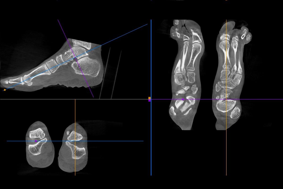 Feet + Ankles
